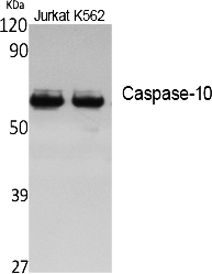 Fig. Western Blot analysis of extracts from Jurkat, K562 cells, using Caspase-10 多克隆 Antibody. Secondary antibody (catalog#: A21020) was diluted at 1:20000.