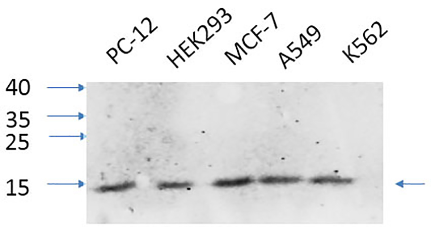 Fig.3. Western Blot analysis of PC-12 (1, HEK293 (2, MCF-7 (3, A549 (4, K562 (5, diluted at 1:1000.