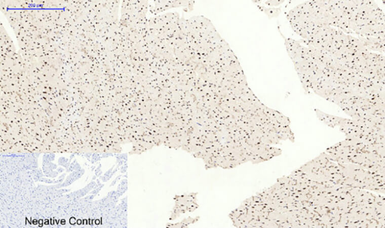 Fig.6. Immunohistochemical analysis of paraffin-embedded rat heart tissue. 1, Bcl-6 多克隆 Antibody was diluted at 1:200 (4°C, overnight). 2, Sodium citrate pH 6.0 was used for antibody retrieval (>98°C, 20min). 3, secondary antibody was diluted at 1:200 (room temperature, 30min). Negative control was used by secondary antibody only.