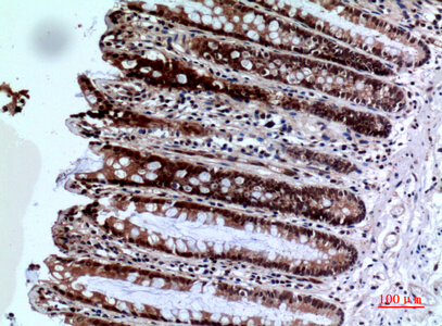 Fig.4. Immunohistochemical analysis of paraffin-embedded human-colon, antibody was diluted at 1:100.