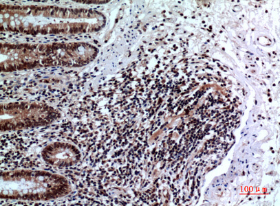 Fig.6. Immunohistochemical analysis of paraffin-embedded human-colon, antibody was diluted at 1:100.