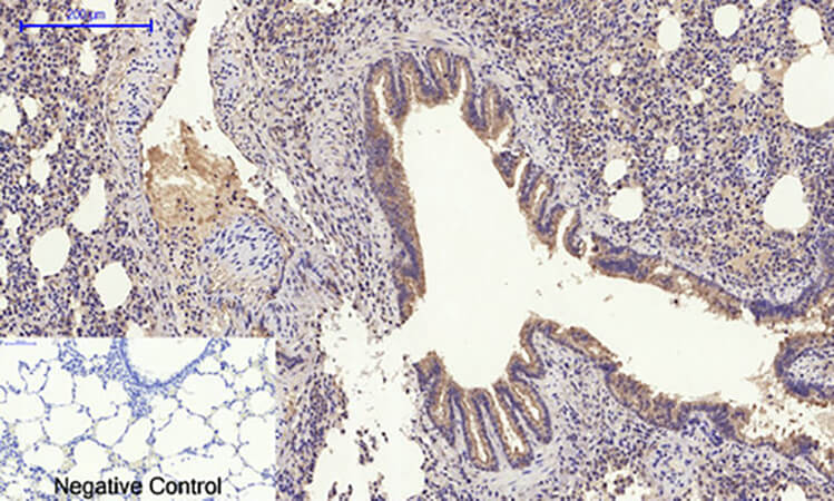 Fig.3. Immunohistochemical analysis of paraffin-embedded rat lung tissue. 1, Glut4 多克隆 Antibody was diluted at 1:200 (4°C, overnight). 2, Sodium citrate pH 6.0 was used for antibody retrieval (>98°C, 20min). 3, secondary antibody was diluted at 1:200 (room temperature, 30min). Negative control was used by secondary antibody only.
