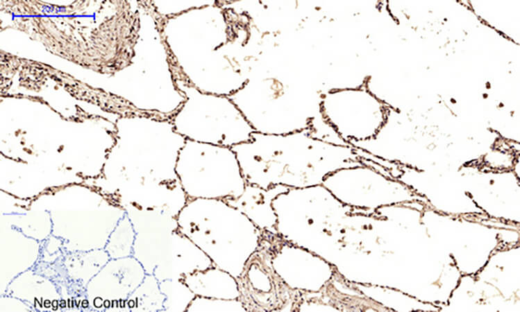 Fig.5. Immunohistochemical analysis of paraffin-embedded human lung tissue. 1, Ub 多克隆 Antibody was diluted at 1:200 (4°C, overnight). 2, Sodium citrate pH 6.0 was used for antibody retrieval (>98°C, 20min). 3, secondary antibody was diluted at 1:200 (room temperature, 30min). Negative control was used by secondary antibody only.