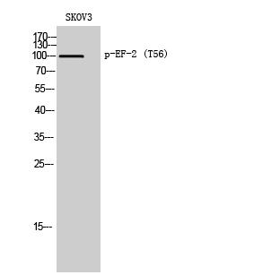Fig. Western Blot analysis of SKOV3 cells using Phospho-EF-2 (T56) 多克隆 Antibody diluted at 1:2000.