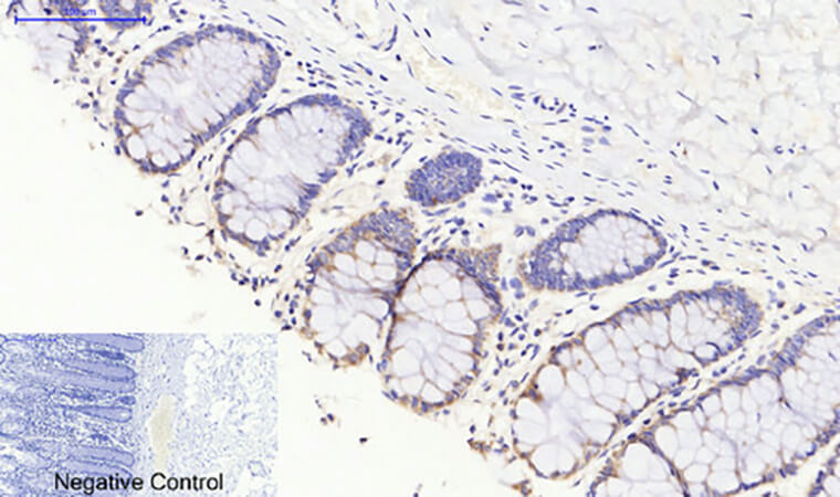 Fig.4. Immunohistochemical analysis of paraffin-embedded human colon tissue. 1, JAK3 Polyclonal Antibody was diluted at 1:200 (4°C, overnight). 2, Sodium citrate pH 6.0 was used for antibody retrieval (>98°C, 20min). 3, secondary antibody was diluted at 1:200 (room temperature, 30min). Negative control was used by secondary antibody only.