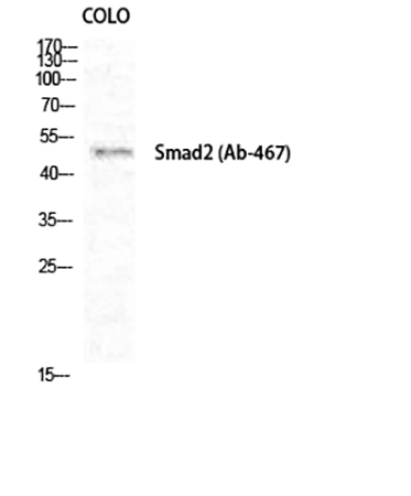 Fig.1. Western Blot analysis of COLO cells using Smad2 Polyclonal Antibody diluted at 1:1000.