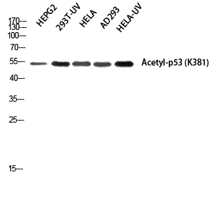 Fig. Western blot analysis of HEPG2 293T-UV HELA AD293 HELA-UV using Acetyl-p53 (K381) Polyclonal Antibody diluted at 1:1000. Secondary antibody was diluted at 1:20000.