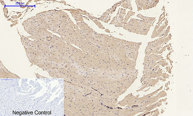Fig.6. Immunohistochemical analysis of paraffin-embedded rat heart tissue. 1, α-SMA Polyclonal Antibody was diluted at 1:200 (4°C, overnight). 2, Sodium citrate pH 6.0 was used for antibody retrieval (>98°C, 20min). 3, secondary antibody was diluted at 1:200 (room temperature, 30min). Negative control was used by secondary antibody only.