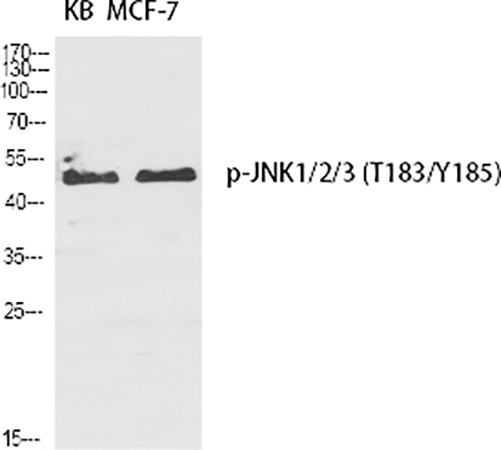 Fig.1. Western Blot analysis of KB (1), MCF-7 (2), diluted at 1:2000.