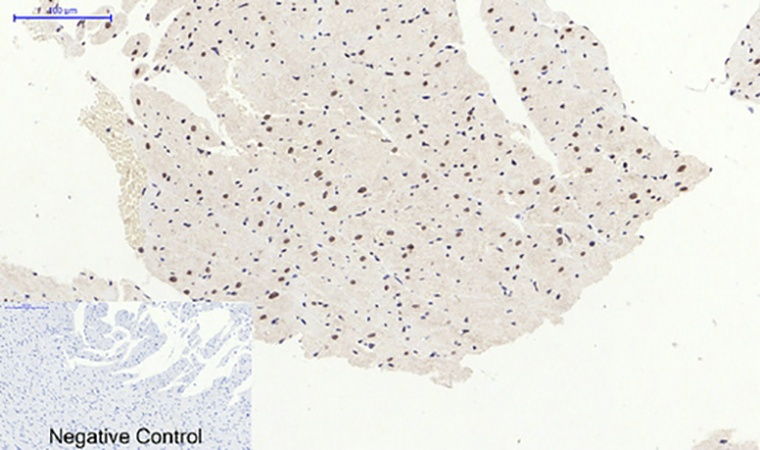 Fig.5. Immunohistochemical analysis of paraffin-embedded rat heart tissue. 1, p38 (phospho Thr180) Polyclonal Antibody was diluted at 1:200 (4°C, overnight). 2, Sodium citrate pH 6.0 was used for antibody retrieval (>98°C, 20min). 3, secondary antibody was diluted at 1:200 (room temperature, 30min). Negative control was used by secondary antibody only.