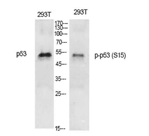 Fig.1. Western Blot analysis of various cells using Phospho-p53 (S15) Polyclonal Antibody diluted at 1:1000.