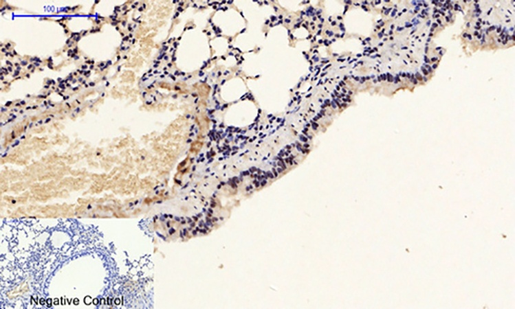 Fig.3. Immunohistochemical analysis of paraffin-embedded mouse lung tissue. 1, p53 (phospho Ser15) Polyclonal Antibody was diluted at 1:200 (4°C, overnight). 2, Sodium citrate pH 6.0 was used for antibody retrieval (>98°C, 20min). 3, secondary antibody was diluted at 1:200 (room temperature, 30min). Negative control was used by secondary antibody only.