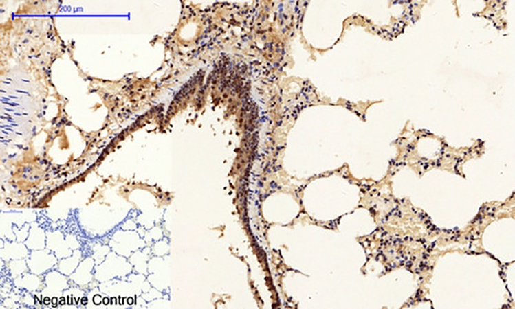Fig.4. Immunohistochemical analysis of paraffin-embedded rat lung tissue. 1, p53 (phospho Ser15) Polyclonal Antibody was diluted at 1:200 (4°C, overnight). 2, Sodium citrate pH 6.0 was used for antibody retrieval (>98°C, 20min). 3, secondary antibody was diluted at 1:200 (room temperature, 30min). Negative control was used by secondary antibody only.
