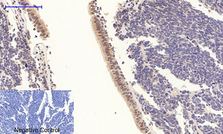 Fig.1. Immunohistochemical analysis of paraffin-embedded human lung cancer tissue. 1, Stat3 (phospho Tyr705) Polyclonal Antibody was diluted at 1:200 (4°C, overnight). 2, Sodium citrate pH 6.0 was used for antibody retrieval (>98°C, 20min). 3, secondary antibody was diluted at 1:200 (room temperature, 30min). Negative control was used by secondary antibody only.