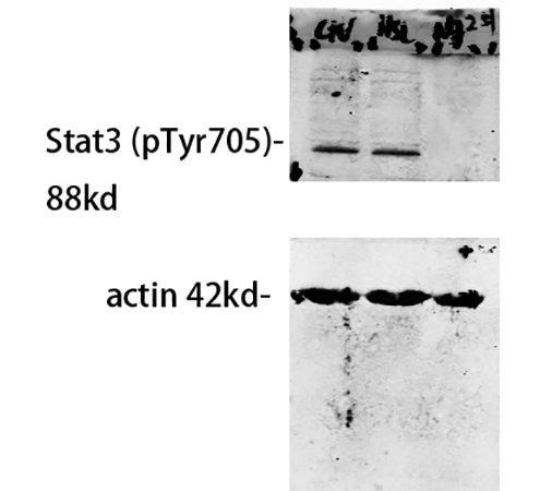 Fig.3. Western Blot analysis of our customer's samples using primary antibody diluted at 1:500, The picture was kindly provided by our customer.
