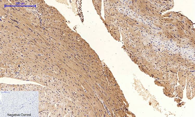 Fig.3. Immunohistochemical analysis of paraffin-embedded mouse heart tissue. 1, Tau (phospho Ser396) Polyclonal Antibody was diluted at 1:200 (4°C, overnight). 2, Sodium citrate pH 6.0 was used for antibody retrieval (>98°C, 20min). 3, secondary antibody was diluted at 1:200 (room temperature, 30min). Negative control was used by secondary antibody only.