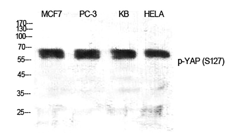 Fig.1. Western Blot analysis of MCF-7(1), PC-3(2), KB(3), Hela(4), diluted at 1:500.