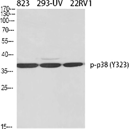 Fig.1. Western Blot analysis of 823(1, 293-UV(2, 22RV1(3, diluted at 1:500.