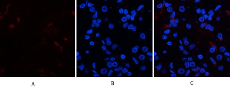 Fig.2. Immunofluorescence analysis of human stomach tissue. 1, p38 (phospho Tyr323) Polyclonal Antibody (red) was diluted at 1:200 (4°C, overnight). 2, Cy3 labeled secondary antibody was diluted at 1:300 (room temperature, 50min). 3, Picture B: DAPI (blue)  10min. Picture A: Target. Picture B: DAPI. Picture C: merge of A+B.