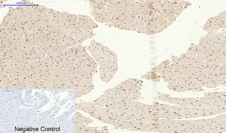 Fig.5. Immunohistochemical analysis of paraffin-embedded rat heart tissue. 1, p38 (phospho Tyr323) Polyclonal Antibody was diluted at 1:200 (4°C, overnight). 2, Sodium citrate pH 6.0 was used for antibody retrieval (>98°C, 20min). 3, secondary antibody was diluted at 1:200 (room temperature, 30min). Negative control was used by secondary antibody only.
