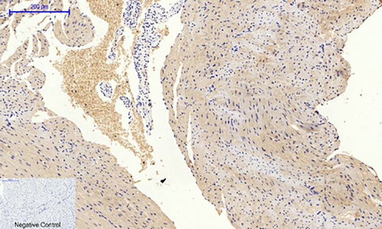 Fig.3. Immunohistochemical analysis of paraffin-embedded mouse heart tissue. 1, PI 3-kinase p85α (phospho Tyr607) Polyclonal Antibody was diluted at 1:200 (4°C, overnight). 2, Sodium citrate pH 6.0 was used for antibody retrieval (>98°C, 20min). 3, secondary antibody was diluted at 1:200 (room temperature, 30min). Negative control was used by secondary antibody only.