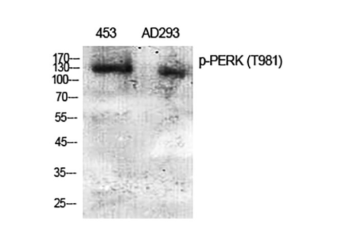 Fig.1. Western Blot analysis of 453(1, AD293(2, diluted at 1:2000.