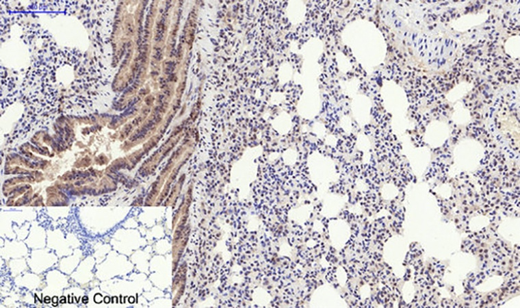 Fig.5. Immunohistochemical analysis of paraffin-embedded rat lung tissue. 1, PERK (phospho Thr981) Polyclonal Antibody was diluted at 1:200 (4°C, overnight). 2, Sodium citrate pH 6.0 was used for antibody retrieval (>98°C, 20min). 3, secondary antibody was diluted at 1:200 (room temperature, 30min). Negative control was used by secondary antibody only.