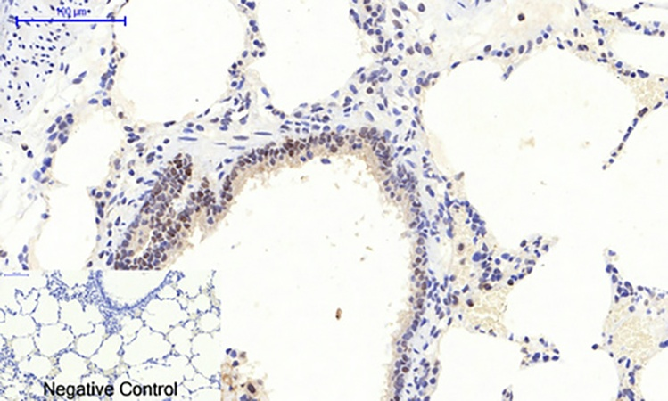 Fig.2. Immunohistochemical analysis of paraffin-embedded rat lung tissue. 1, ERK 1/2 (phospho Thr202/Y204) Polyclonal Antibody was diluted at 1:200 (4°C, overnight). 2, Sodium citrate pH 6.0 was used for antibody retrieval (>98°C, 20min). 3, secondary antibody was diluted at 1:200 (room temperature, 30min). Negative control was used by secondary antibody only.