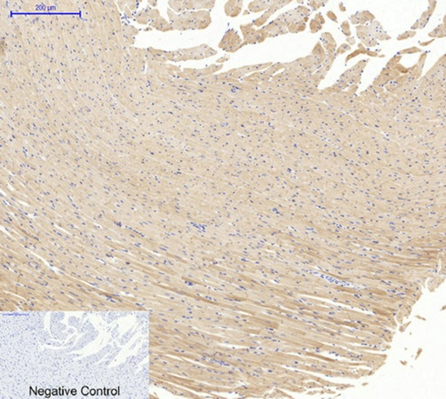 Fig.3. Immunohistochemical analysis of paraffin-embedded rat heart tissue. 1, Actin β Polyclonal Antibody was diluted at 1:200 (4°C, overnight). 2, Sodium citrate pH 6.0 was used for antibody retrieval (>98°C, 20min). 3, secondary antibody was diluted at 1:200 (room temperature, 30min). Negative control was used by secondary antibody only.