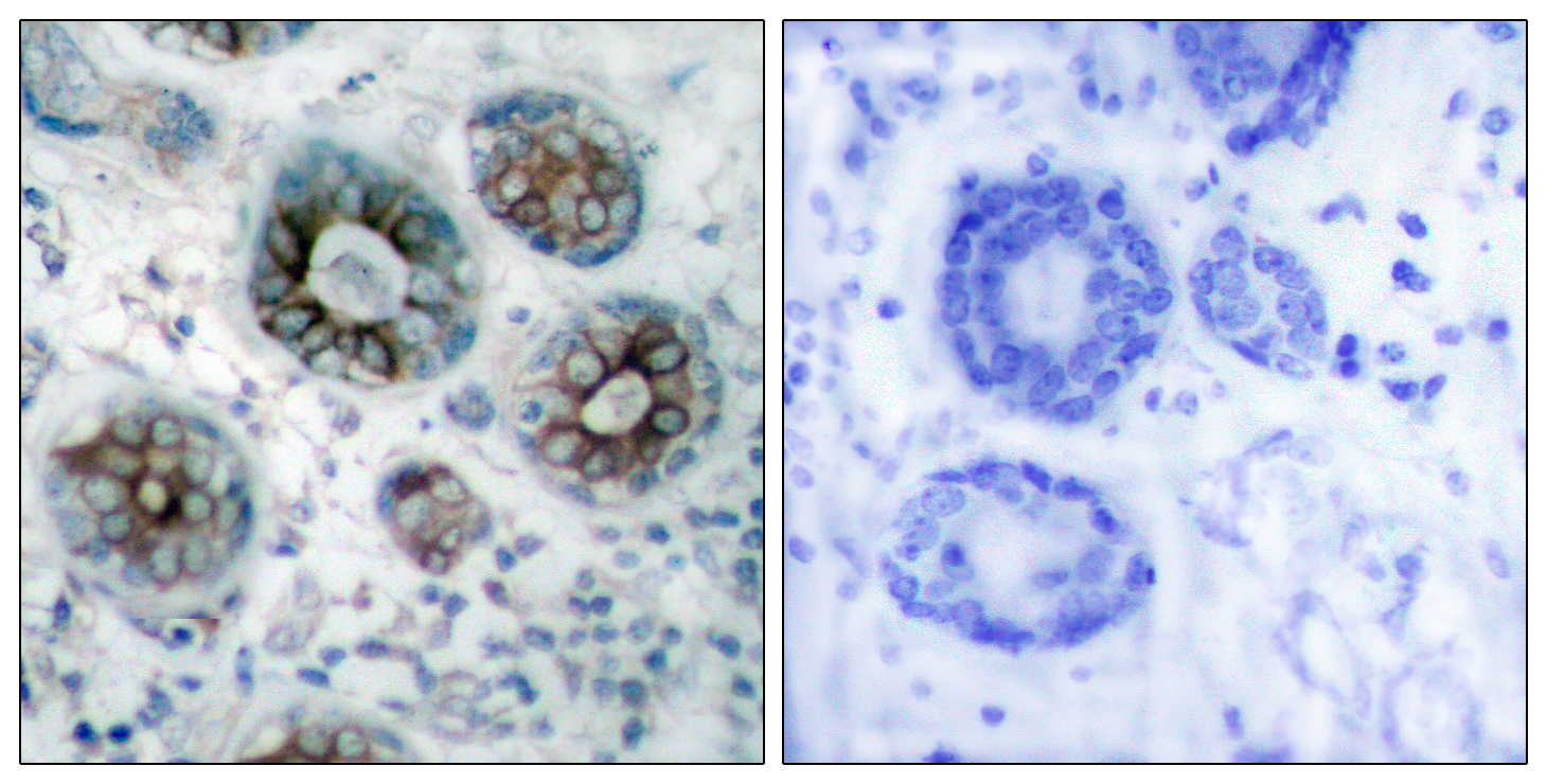 Fig.2. Immunohistochemistry analysis of paraffin-embedded human breast carcinoma tissue, using GAP43 Antibody. The picture on the right is blocked with the synthesized peptide.