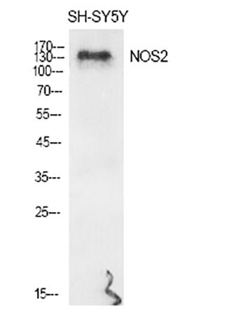 Fig.1. Western Blot analysis of various cells using NOS2 Polyclonal Antibody diluted at 1:500.