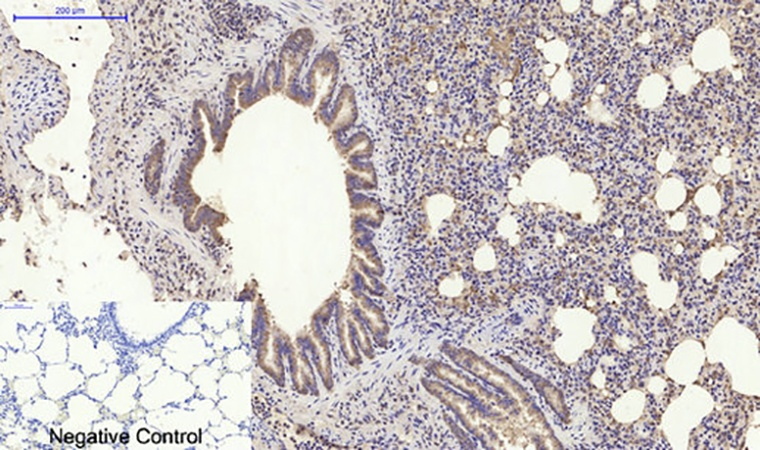 Fig.5. Immunohistochemical analysis of paraffin-embedded rat lung tissue. 1,  PI 3-kinase p85α Polyclonal Antibody was diluted at 1:200 (4°C, overnight). 2,  Sodium citrate pH 6.0 was used for antibody retrieval (>98°C, 20min). 3, secondary antibody was diluted at 1:200 (room temperature, 30min). Negative control was used by secondary antibody only.