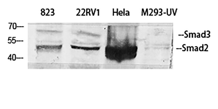Fig.1. Western Blot analysis of 823 (1, 22RV1 (2, Hela (3, M293-UV (4, diluted at 1:500.