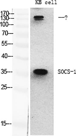 Fig.1. Western Blot analysis of various cells using SOCS-1 Polyclonal Antibody diluted at 1:2000.