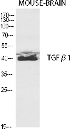 Fig.1. Western Blot analysis of various cells using TGFβ1 Polyclonal Antibody diluted at 1:2000.