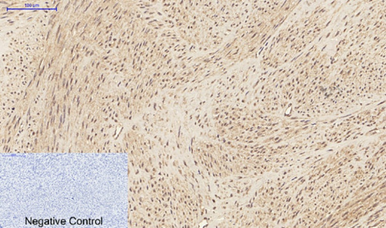 Fig.2. Immunohistochemical analysis of paraffin-embedded human uterus tissue. 1, IL-1β Polyclonal Antibody was diluted at 1:200 (4°C, overnight). 2, Sodium citrate pH 6.0 was used for antibody retrieval (>98°C, 20min). 3, secondary antibody was diluted at 1:200 (room temperature, 30min). Negative control was used by secondary antibody only.