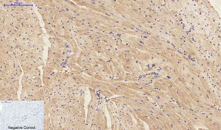 Fig.3. Immunohistochemical analysis of paraffin-embedded mouse heart tissue. 1, IL-1β Polyclonal Antibody was diluted at 1:200 (4°C, overnight). 2, Sodium citrate pH 6.0 was used for antibody retrieval (>98°C, 20min). 3, secondary antibody was diluted at 1:200 (room temperature, 30min). Negative control was used by secondary antibody only.