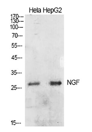 Fig.1. Western Blot analysis of Hela (1, HepG2 (2).