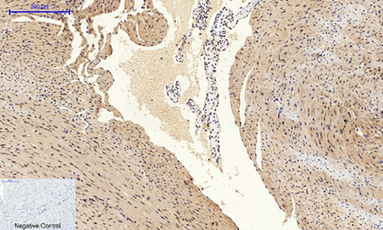 Fig.4. Immunohistochemical analysis of paraffin-embedded mouse heart tissue. 1, Bad Polyclonal Antibody was diluted at 1:200 (4°C, overnight). 2, Sodium citrate pH 6.0 was used for antibody retrieval (>98°C, 20min). 3, secondary antibody was diluted at 1:200 (room temperature, 30min). Negative control was used by secondary antibody only.