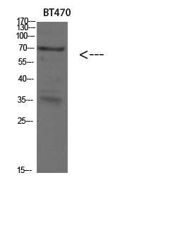 Fig.1. Western blot analysis of SKOV3 293T lysate, antibody was diluted at 1:500. HRP, Goat Anti-Rabbit IgG (Cat #: A21020) secondary antibody was diluted at 1:20000.