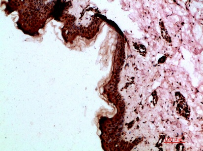 Fig.2. Immunohistochemical analysis of paraffin-embedded human-skin, antibody was diluted at 1:200.