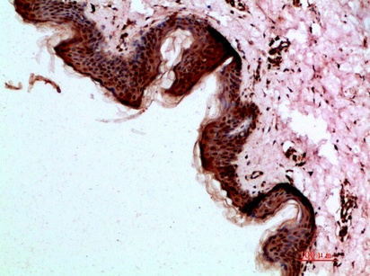 Fig.3. Immunohistochemical analysis of paraffin-embedded human-skin, antibody was diluted at 1:200.