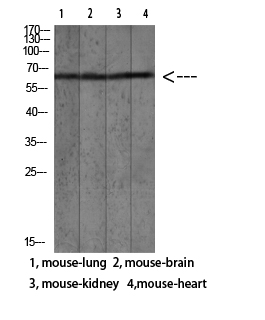 Fig.1. Western blot analysis of human blood lysate, antibody was diluted at 1:1000. HRP, Goat Anti-Rabbit IgG (Cat #: A21020) secondary antibody was diluted at 1:20000.