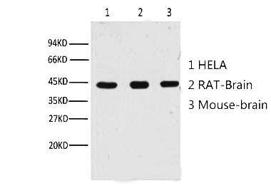 Fig. Western blot analysis of Hela (1) , Rat brain (2) , Mouse brain (3) ,(A02) diluted at 1:10000.