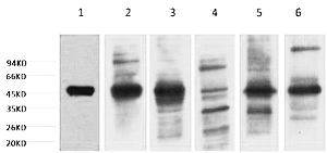 Fig. Western blot analysis of 1) HepG2, 2) Hela, 3) Mouse Liver tissue, 4) C2C12, 5) Rat Heart tissue, 6) Mouse Skeletal Muscle tissue, (8F2) diluted at 1:2000.