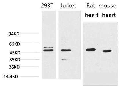 Fig.1. Western blot analysis of 1) 293T, 2) Jurkat, 3) Rat Heart Tissue, 4) Mouse Heart Tissue with Smad3 Mouse mAb diluted at 1:2000.