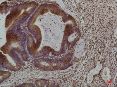 Fig.3. Immunohistochemical analysis of paraffin-embedded Human Colon Carcinoma using Smad3Mouse mAb diluted at 1:200.
