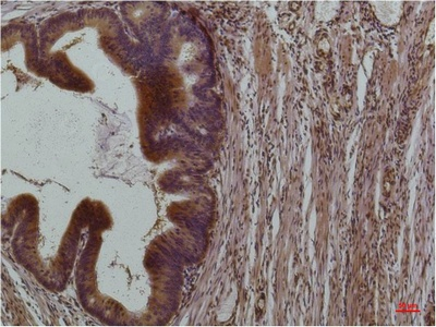 Fig.2. Immunohistochemical analysis of paraffin-embedded Human Colon Carcinoma using STAT3Mouse mAb diluted at 1:200.