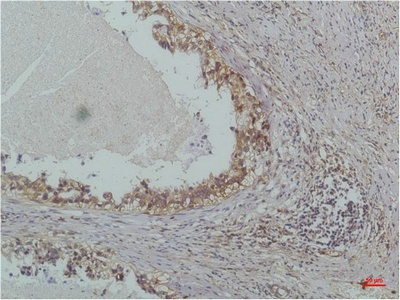 Fig.1. Immunohistochemical analysis of paraffin-embedded Human Lung Carcinoma using IκB β (Mouse mAb diluted at 1:200.
