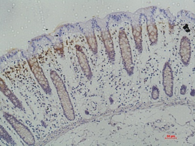 Fig. Immunohistochemical analysis of paraffin-embedded human-colon using antibody diluted at 1:50.